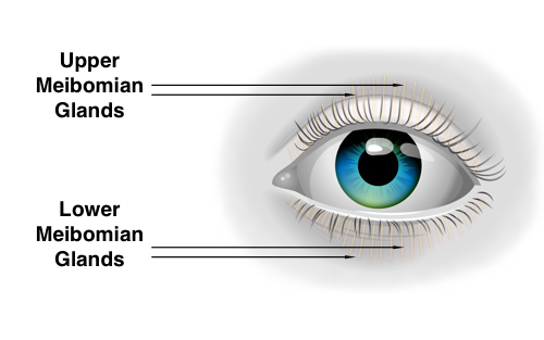 Dry Eye Syndrome - Meibomian Glands